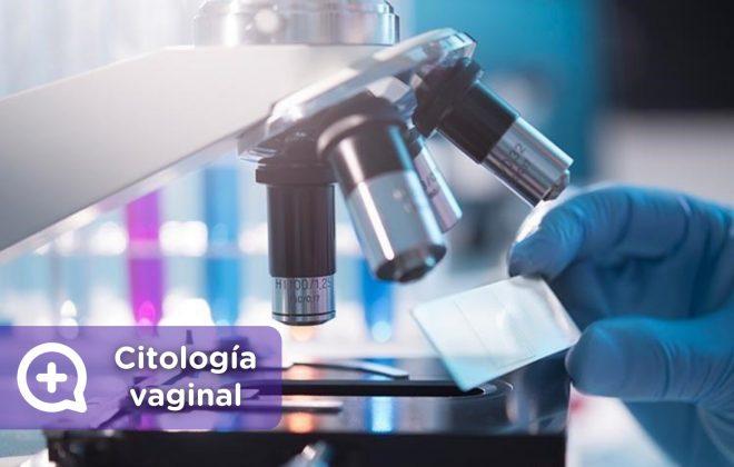 Citología vaginal, test de papanicolauo. ginecología. MediQuo, tu amigo médico. Chat médico.