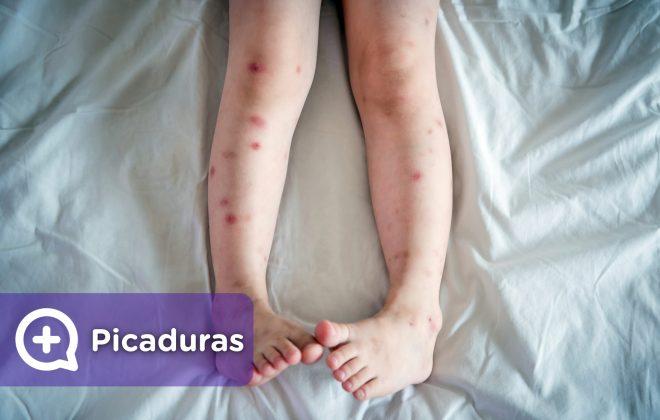 Picaduras y ronchas en piernas, cara, brazos, cuerpo, producidas por mosquitos, arañas, insectos