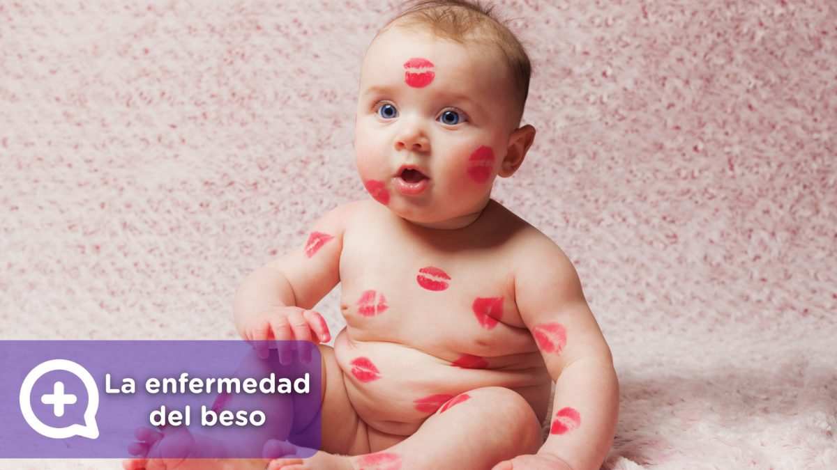 Mononucleosis o enfermedad del beso. Infección por el contacto con la saliva.