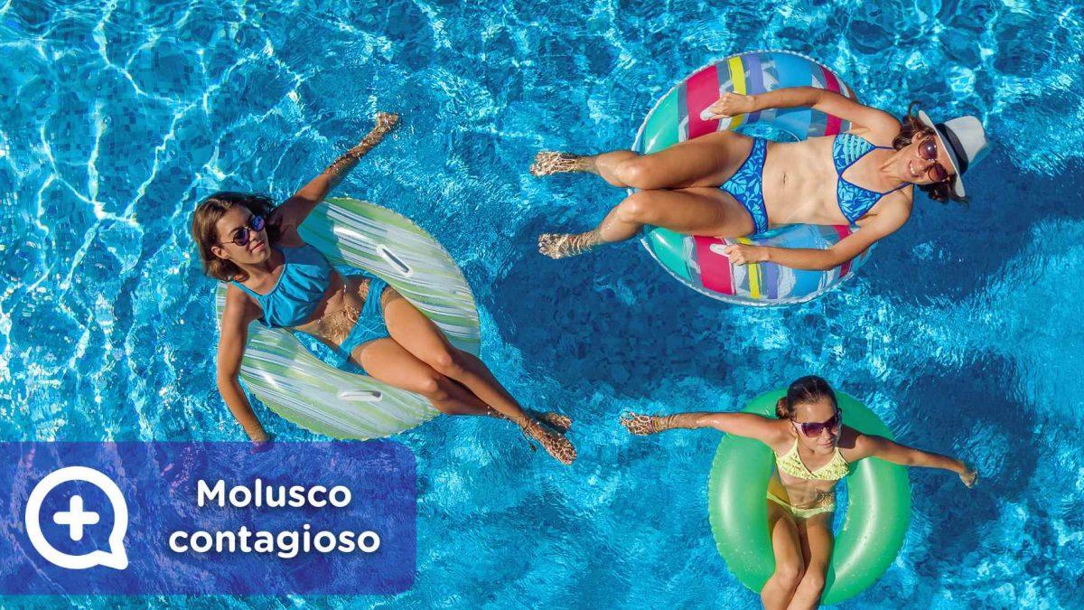 Molusco contagioso en la piscina, verano, contacto, toalla, infección cutánea.
