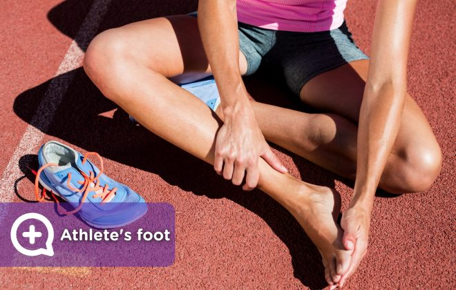 Woman athlete with athlete's foot, foot condition, fungus