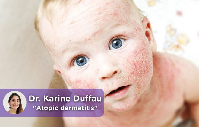 Child atopic dermatitis. MediQuo, your doctor friend. Medical chat Dr. Karine Duffau.