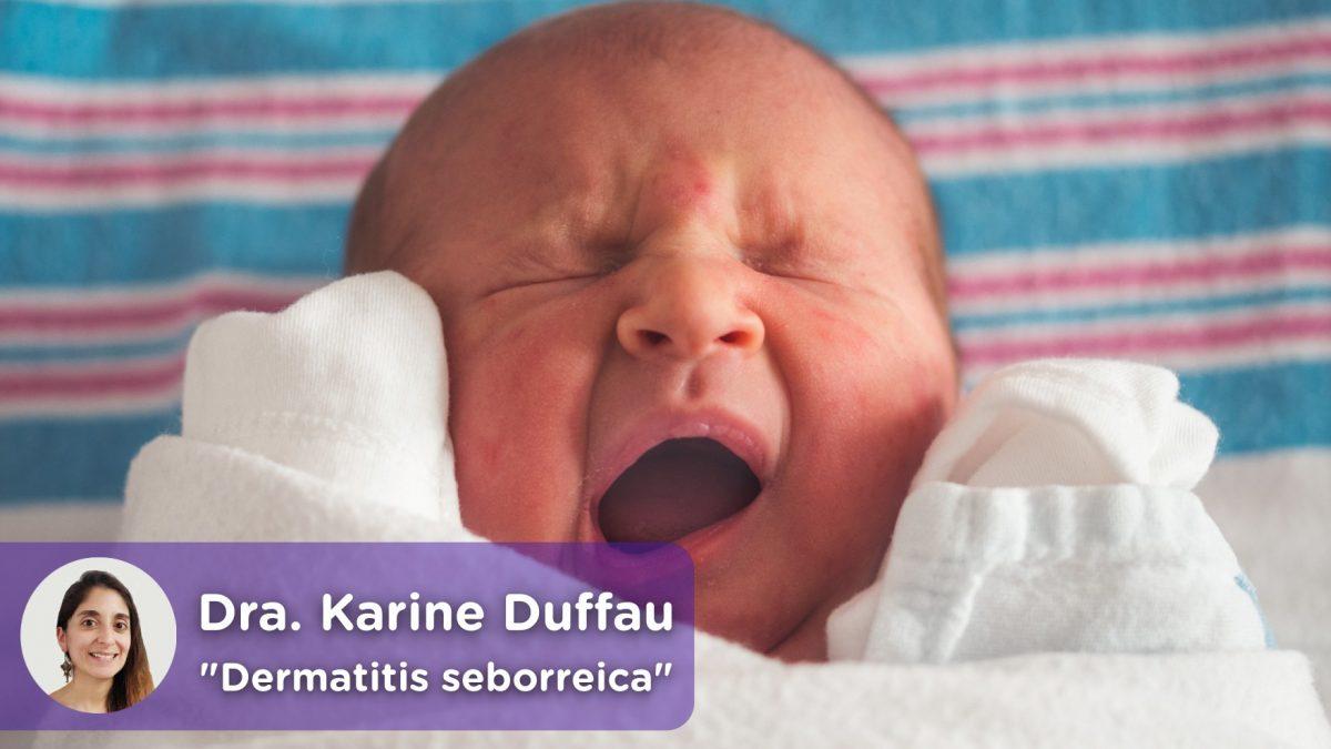 Dermatitis seborréica infantil. Costra láctea, recién nacidos, cuero cabelludo. Doctora Karine Duffau. MediQuo, tu amigo médico. Chat médico.