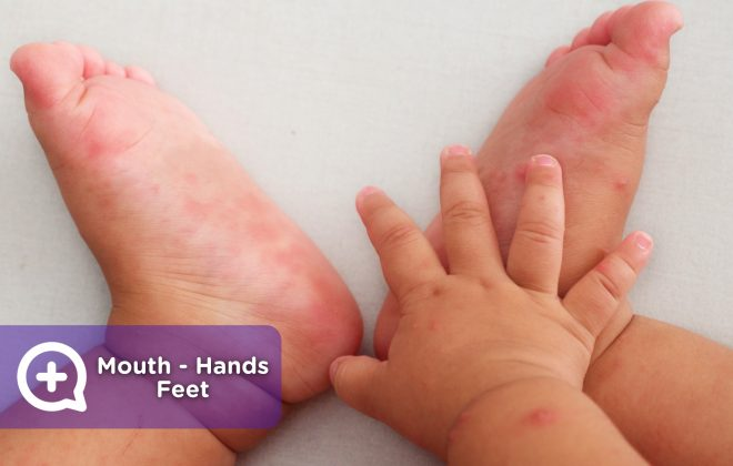 The hand mouth and foot disease is very contagious