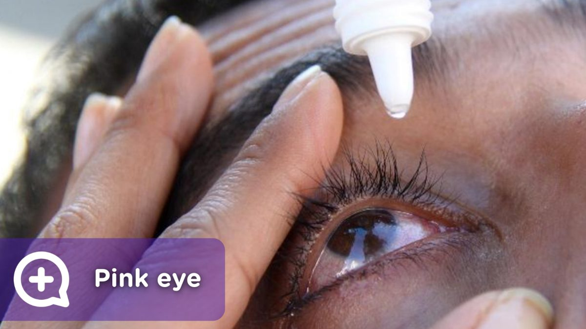 Conjunctivitis, contagious eye infection, drops to relieve itching