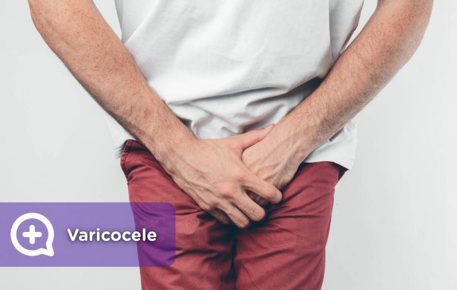 The varicocele is a spermatic cord that is around the testicles, composed of arteries, veins and nerves, which carries blood to the testicles, as well as semen to the vas deferens.