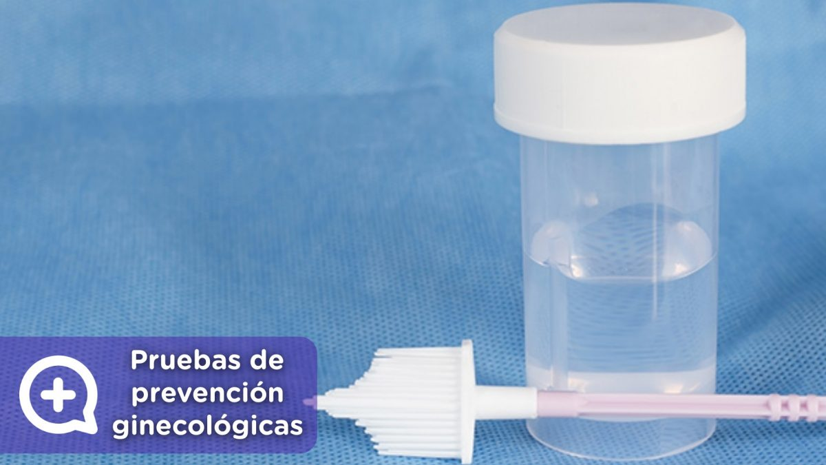 test papanicolau. Pruebas de prevención ginecológicas, citologías, mamografía. Ginecología, ginecólogo. MediQuo, tu amigo médico. Chat médico.