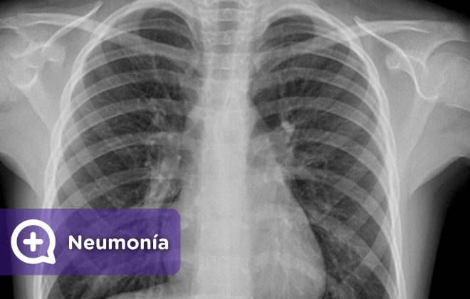 Neumonía, problemas pulmonares. Respiración. MediQuo, Tu amigo médico. Chat médico.