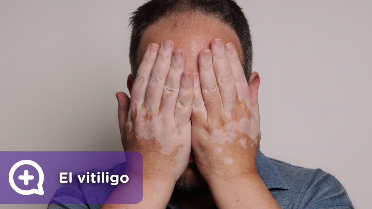 Vitiligo, problemas en la piel. Cambio de color. Pérdida de pigmentación. Mediquo. Dermatología. Chat médico. Tu amigo médico.