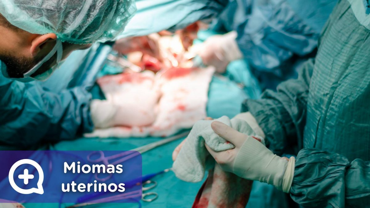 Miomas uterinos, benigno. Útero. Ginecología. Mediquo, Tu amigo médico.