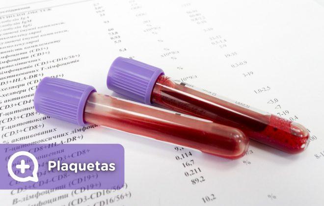 Análisis de sangre, plaquetas altas, plaquetas bajas, qué significa. Mediquo, tu amigo médico. Chat médico.