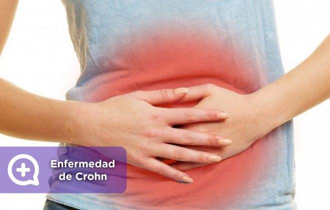 Enfermedad de crohn, aparato digestivo. Mediquo, Tu amigo médico. Chat médico. Salud.
