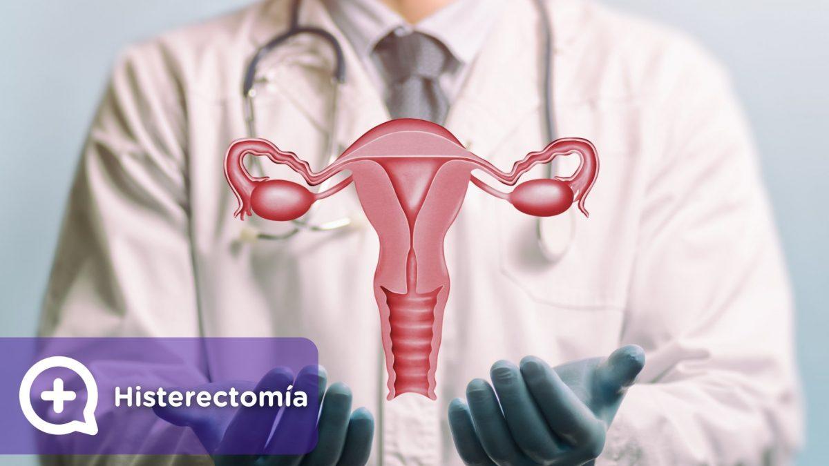 Histerectomía, salud femenina, deseo sexual, ginecología, mujer. Mediquo, tu amigo médico, chat médico.