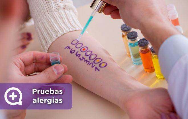 Pruebas cutáneas alergia. Brazo, pick test. Mediquo, Tu amigo médico. Chat médico. Ácaros, polen