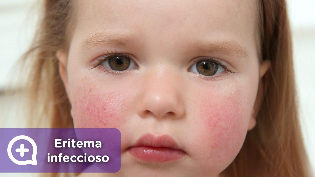 Eritema infeccioso, quinta enfermedad, parvovirus, megaloeritema, mejillas abofeteadas. pediatría, niños, mediquo.