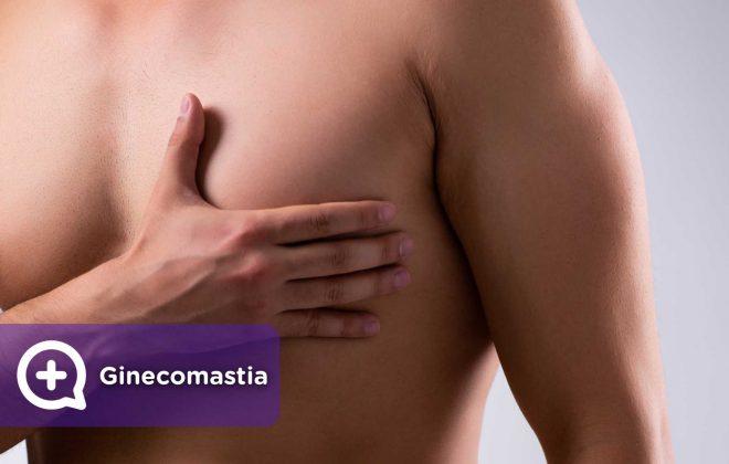 Ginecomastia, pecho, hombre, operación, cirugía. Salud. MediQuo.