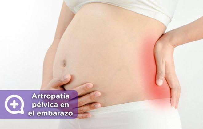 artropatía pélvica en el embarazo. Mediquo. Tu amigo médico. Chat médico. Ginecología.