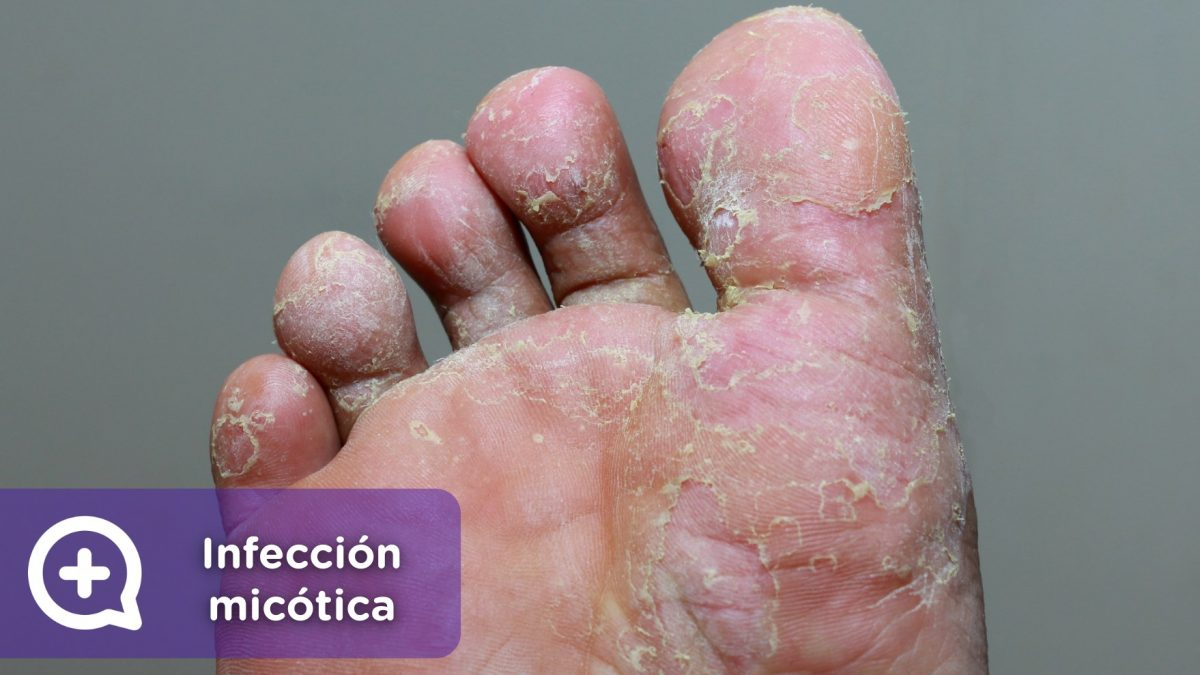 Infección micótica, micosis, pie de atleta, tiña, hongo. Mediquo. Tu amigo médico. Chat. Salud. Pies.