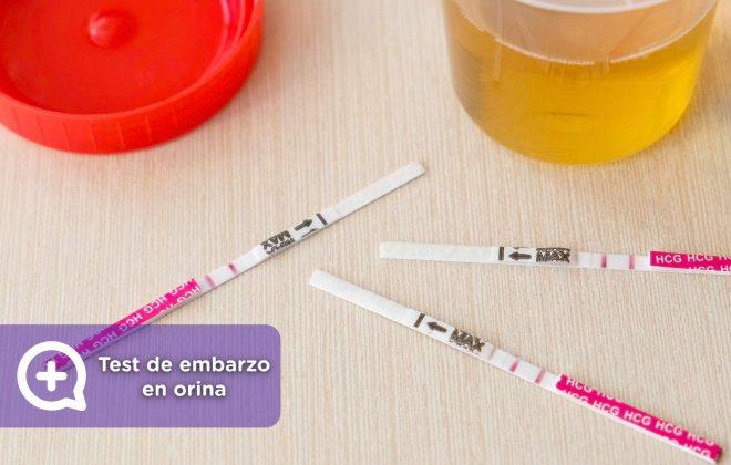 qué es el test de embarazo en orina y cómo se hace. ginecología, mediquo