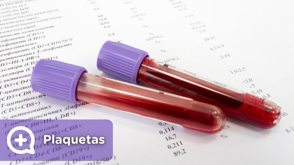Exame de sangue, plaquetas altas, plaquetas baixas, o que significa. Mediquo, seu amigo médico. Bate-papo médico.