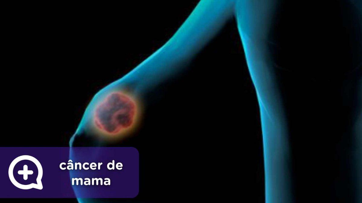 Câncer de mama MediQuo, seu amigo médico. Bate-papo médico.