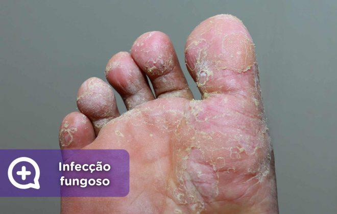 mediquo Infecção, Infecção fungoso, micose, pele, saúde