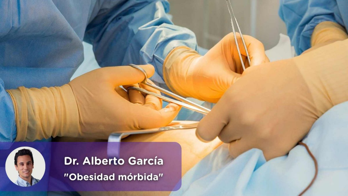 Sleeve, bypass, balón gástrico, manga gástrica, cirugía bariátrica, obesidad, cirujano, mediquo, salud