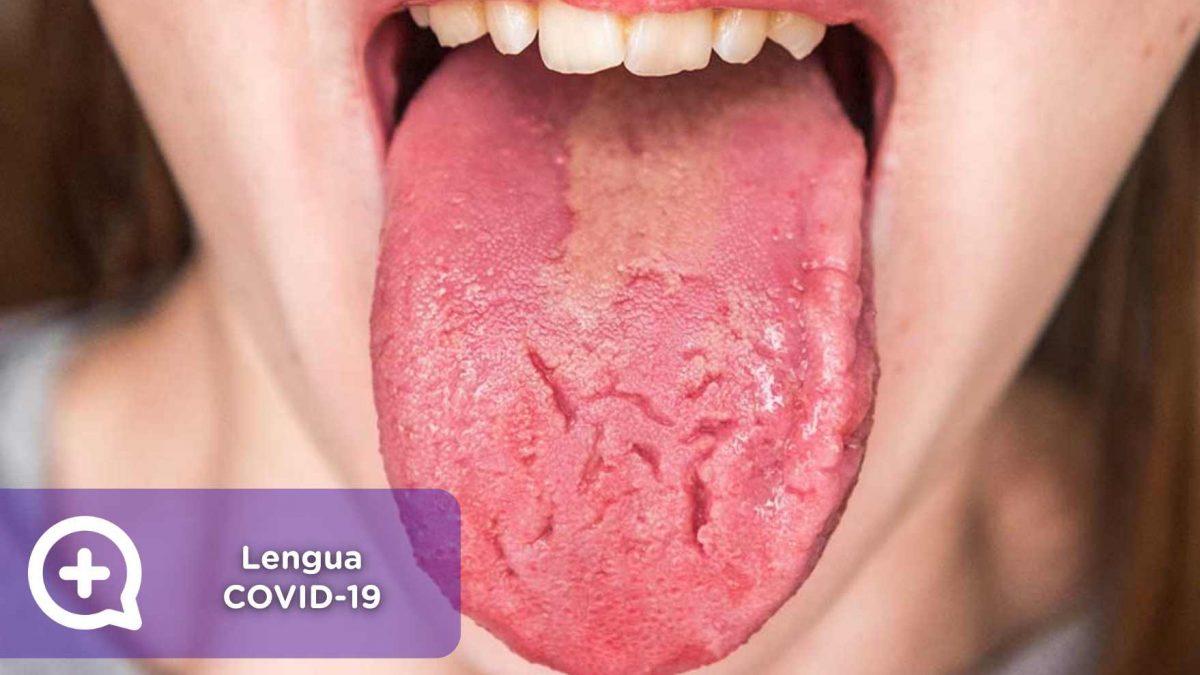 Lengua covid-19, covid, coronavirus, síntomas, sars-cov-2, mediQuo, consulta