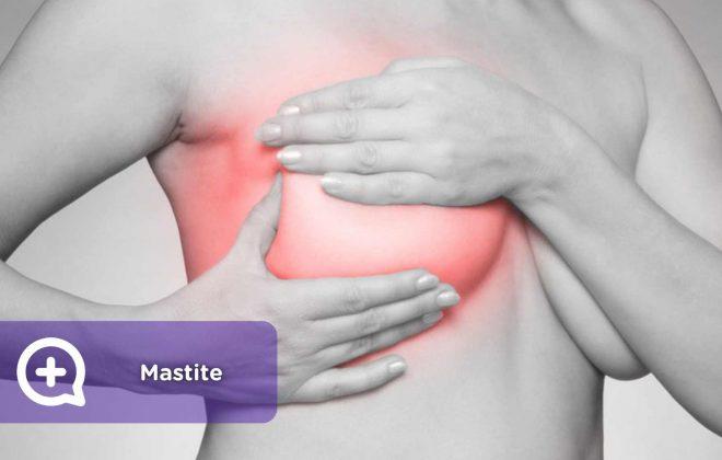 Mastite, mama, tórax, dor, inflamação, vermelhidão, lactação, maternidade, saúde, mediquo