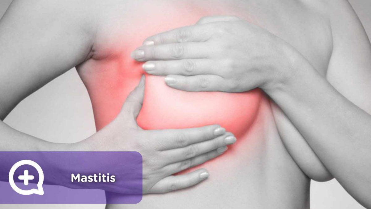 Mastitis, mama, pecho, dolor, inflamación, enrojecimiento, lactancia, maternidad, salud, mediquo